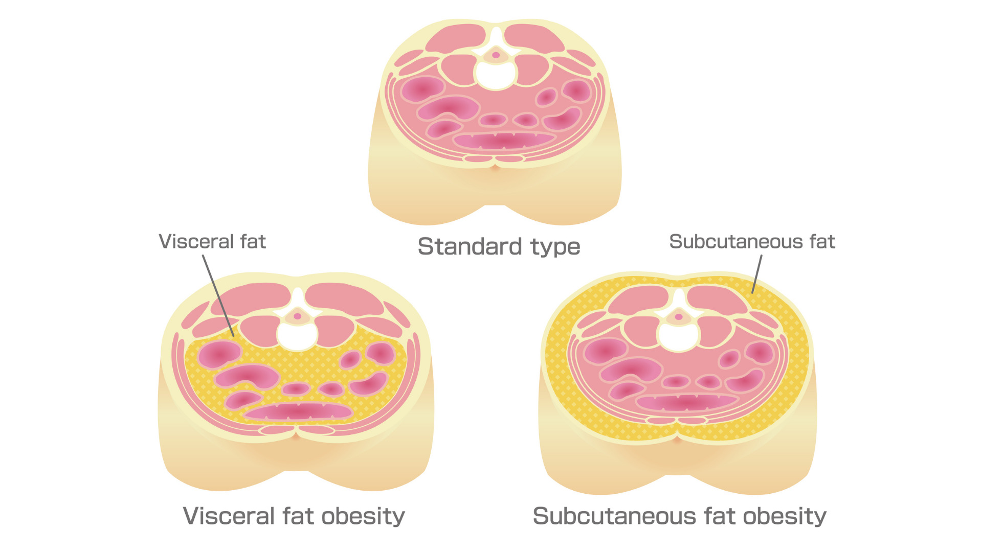 A cross section of the abdomen - visceral fat (yellow) is behind the muscles of the abdominal wall (pink) and surrounds internal organs.